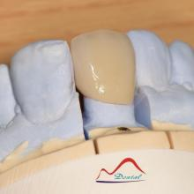 BruxZir  Anterior Solid Zirconia Crown