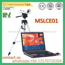 MSLCE01 Kostengünstige Digital Laptop Colposcope Hochwertiges Video-Colposcope für Vagina