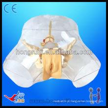 Cateter uretral modelo de cateterismo uretral feminino transparente de alta qualidade