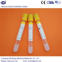 Tubes de collecte de sang sous vide Sst Tube (ENK-CXG-021)