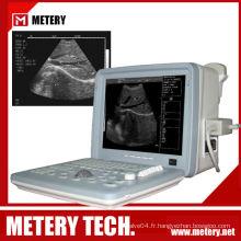 Scanner ultra-son numérique à ultrasons numériques