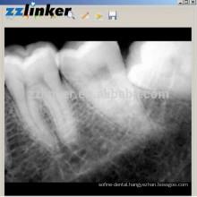 LK-C64 Yes Biotech Dental X-ray Sensor Dental Digital