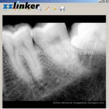 LK-C64 Sim Sensor Odontológico Odontológico Biotech Dental Digital