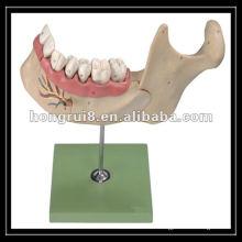 Modelo de dientes adultos amplificados por la ISO, mandíbula inferior de un niño de 18 años HR / B10002