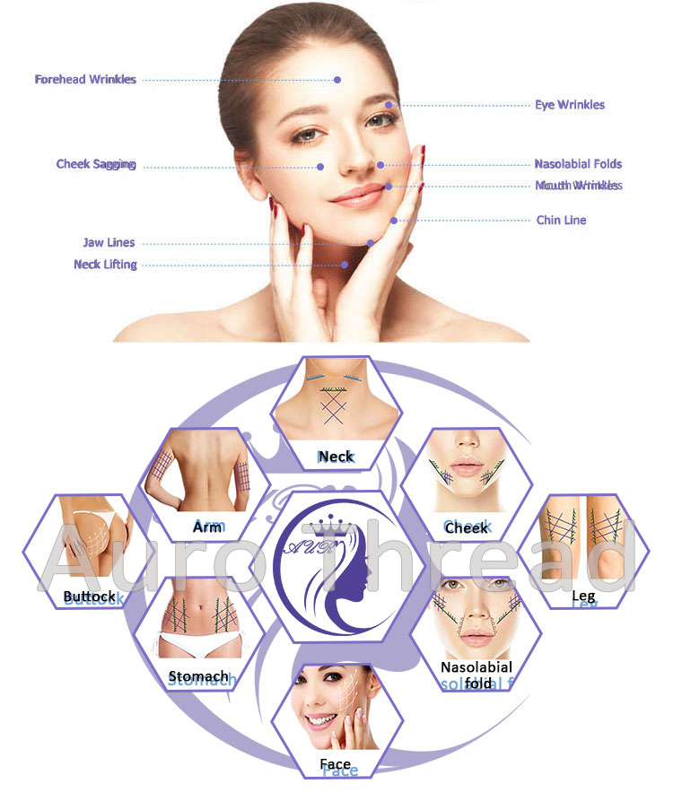 Pdo Thread Facial Lift