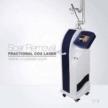 Вертикальный лазер СО2