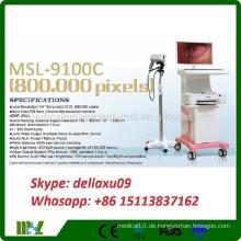 Heißer Verkauf Art- und Weisetyp-Laufkatze Digital-elektronisches Colpscope Trolley Colposcope MSL9100C-A