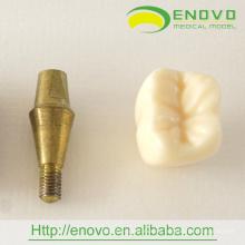 EN-T18 zwei Teile neues Implantat-Modell für zahnmedizinische Förderung Geschenk