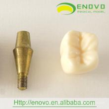 АН-Т18 две части новой модели имплантата для продвижения стоматологической подарок