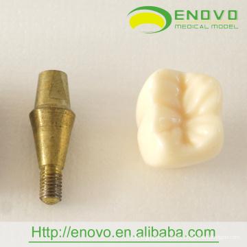 EN-T18 Nuevo modelo de implante de dos piezas para regalo de promoción dental
