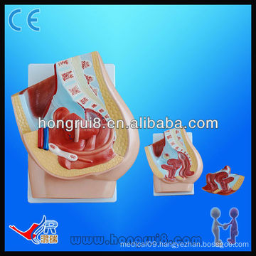 Advanced PVC painted median section of female pelvis model (2 parts), teaching female pelvis model