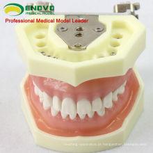 DENTAL04 (12563) Modelo anatômico Modelo Estudo Dental Modelos com goma macia