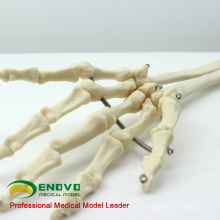 JOINT11 (12358) Medizinische Anatomie Mensch Oberarm Skelettmodelle, Gelenkarm Skelettmodell