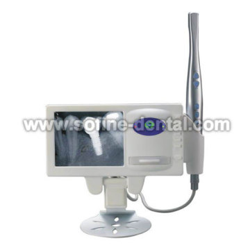 X-ray-Film-Lesegerät