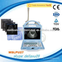 MSLPU27A High end laptop ultrasound machine/portable ultrasound device