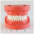 28pcs parafuso dentes fixos goma dura padrão dental modelo 13002