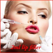 Plumper Lip Rides Line Filler Injections HA