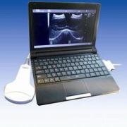 Digital Portable / Mobile / Laptop Ultrasound Scanner ( Medical Equipment ) Belson 3000m