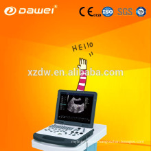 CE & ISO 3D color doppler ultrasound as well as sonoscape ultrasound for Cardiac Vessel Liver Kidney Pediatrics