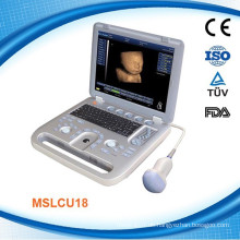 MSLCU18K CE ISO13485 genehmigt 4D Digital Ultraschall Maschine / Scanner Farb Doppler mit DICOM 3.0