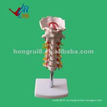 Columna vertebral cervical vívida, modelo médico de la espina dorsal
