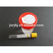 Tube à urine sous vide 9,5 ml jetable
