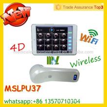 MSLPU37M CE & ISO zugelassenen protable Blasenscanner Wireless Blasensonde