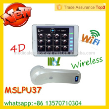 MSLPU37M CE & ISO approved protable bladder scanner wireless bladder probe