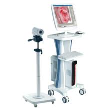 2015 más vendido equipos médicos Colposcopios electrónicos baratos