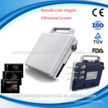 (MSLCU26-A) portable doppler ultrasound machine/doppler ultrasound price