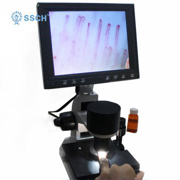 testador portátil do capillaroscope de Nailfold da exposição de diodo emissor de luz