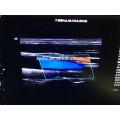 """Новое Прибытие 19"""" плюс 10.4""""реального времени СИД 4Д цвет doppler вагонетки высокого класса 3D и 4D УЗИ машиностроительные заводы"""