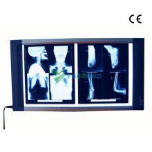 Просмотрщик рентгеновских снимков для медицинской радиографии