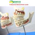 DENTAL22(12604) детей Huamn это плод развития зубов модель с 4 части стоматологических моделей