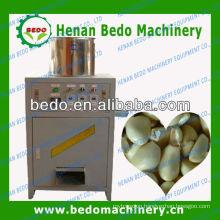 2014 China best supplier industrial peeling machine for garlic 008613253417552
