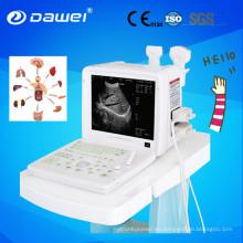 Precio de la máquina portátil de ultrasonido Chison 2D
