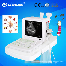 Chison 2D portable ultrasound machine price