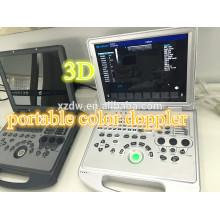 portable 3D echo color doppler ultrasonic scan machine