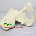 WHOLESALE SIMULATION BONE 12316 Medical Anatomy Artificial Hip Bone Model , Orthopaedics Practice Simulation Bone