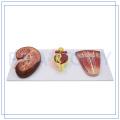 PNT-0564 Kidney nephron and glomerulus model