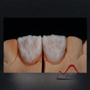 Dental IPS E.max® thin veneer