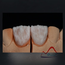 Dental IPS E.max® thin veneer