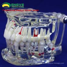 VERKAUFEN Sie 12568 Adult Dental Zähne Transparent Disse Modell zeigen Karies