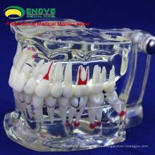 VENDER 12568 Dientes dentales adultos transparentes modelo de la Disensión Mostrar Caries