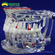 VENDRE 12568 Disease Transparent Dentaire Adulte Modèle Montrer Caries