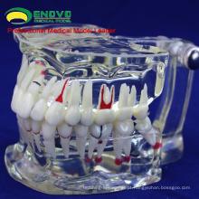 VENDER 12568 Dentes Dentais Adultos Transparente Disase Modelo Mostrar Cárie