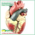 HEART09(12485) объемная анатомическая модель человеческого сердца, 3-части, Анатомия модели > модели сердца