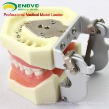 VENDER 12609 Tratamiento de enfermedades periodontales de grado medio Modelos de mandíbula de entrenamiento