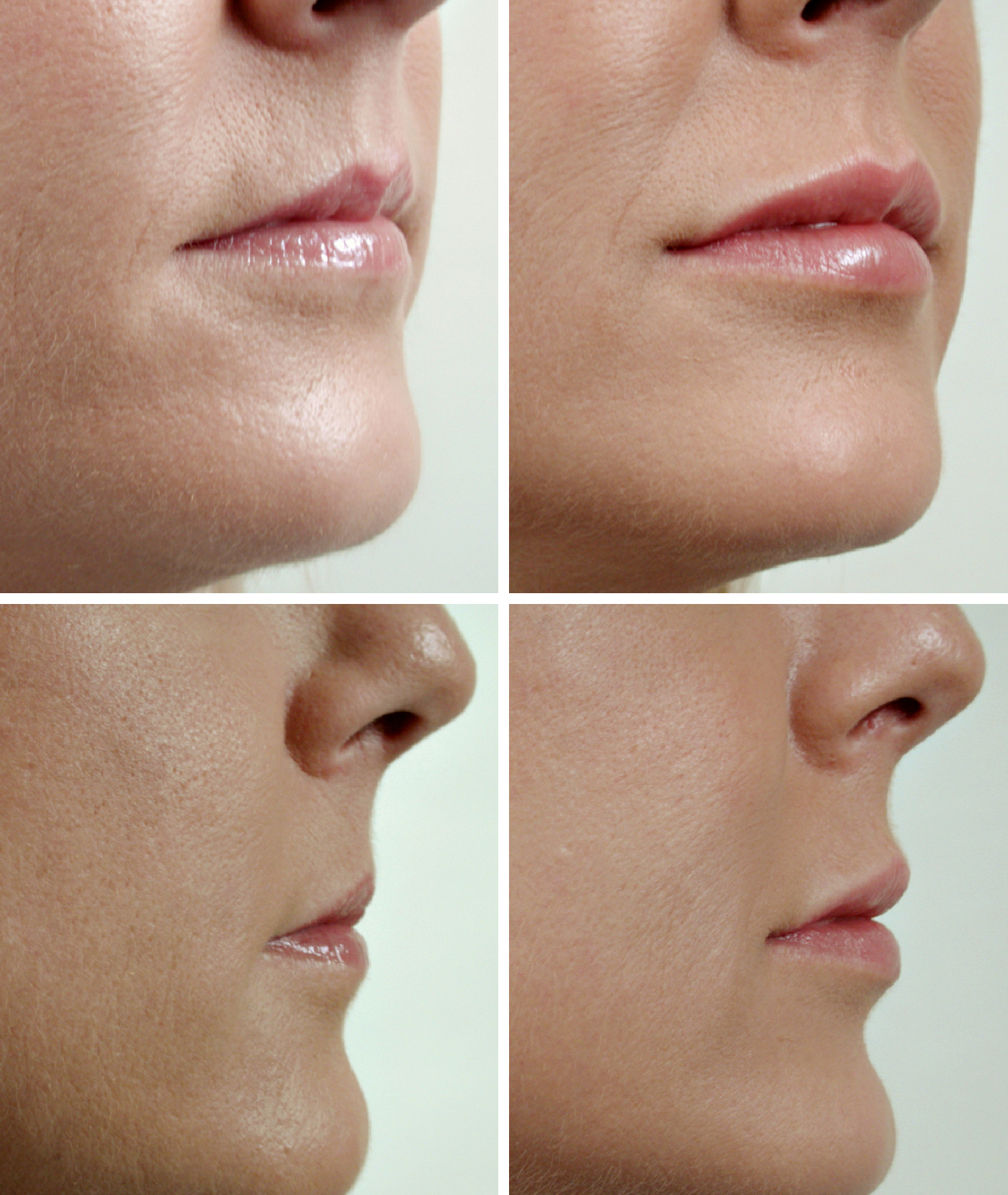 Chemical Lip Enhancement