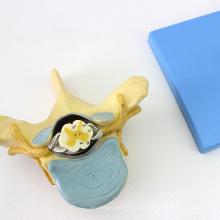 VERTEBRA11 (12395) Vértebras torácicas de la ciencia médica con médula espinal (modelo médico, modelo anatómico)